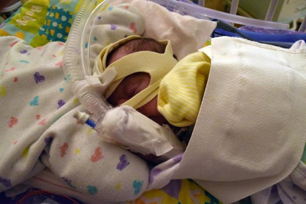 Hazel on CPAP