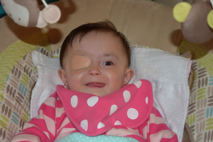 Hazel with her eye patch on